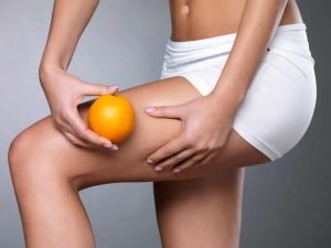 Combattere e sconfiggere la cellulite: Snep Crema riducente Adiposità e Cellulite
